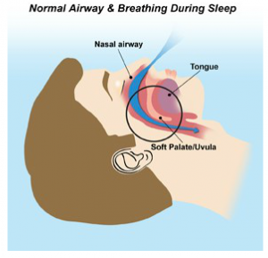 Carmel Valley San Diego Community | Dr. Rohatgi | Normal Airway & Breathing during Sleep